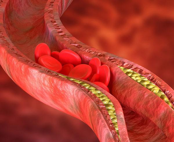 Eco-doppler e visita angiologica per prevenire le malattie cardiovascolari