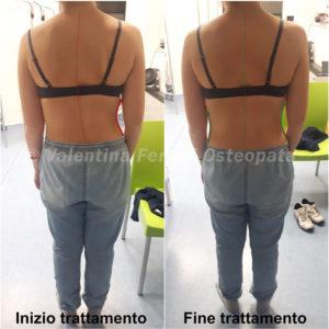 Scoliosi prima e dopo il trattamento osteopatico