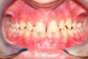 Prima del trattamento con Invisalign
