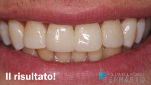 risultato ricostruzione dente