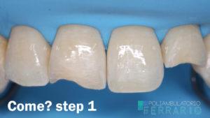 step 1 ricostruzione