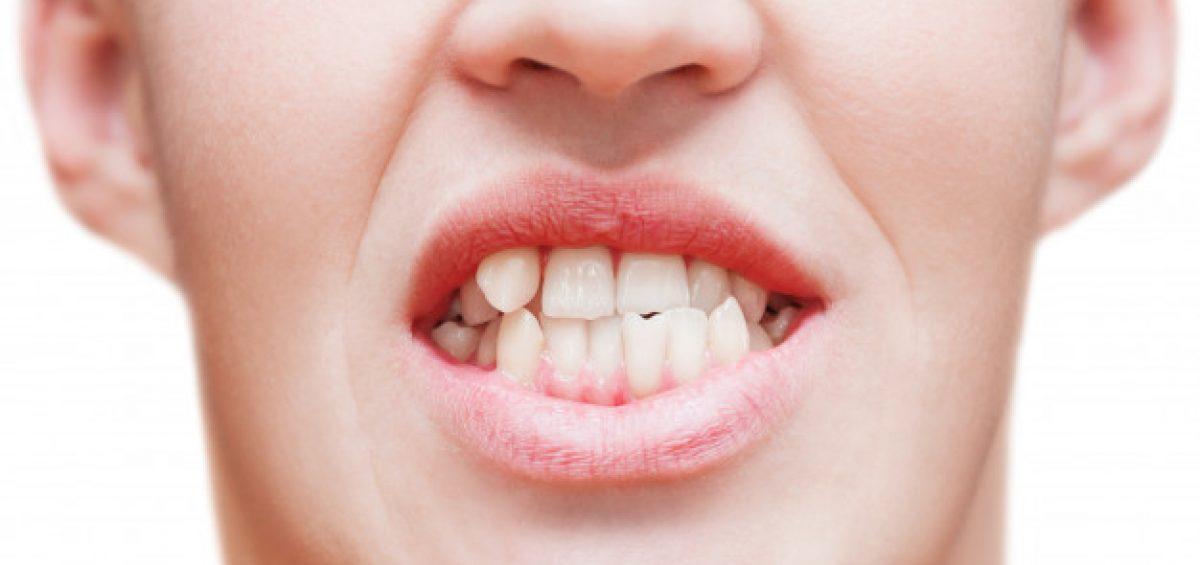 Denti storti, problemi e patologie, come allinearli con l'apparecchio trasparente invisalign