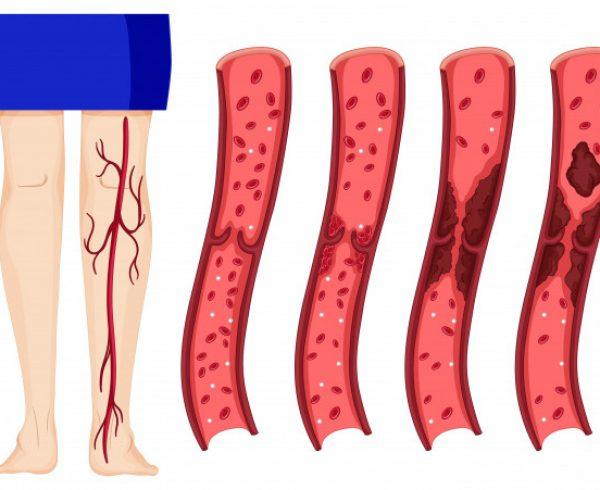 Trombosi venosa profonda e superficiale, trombosi arteriosa: diagnosi visita angiologica Sesto San Govanni