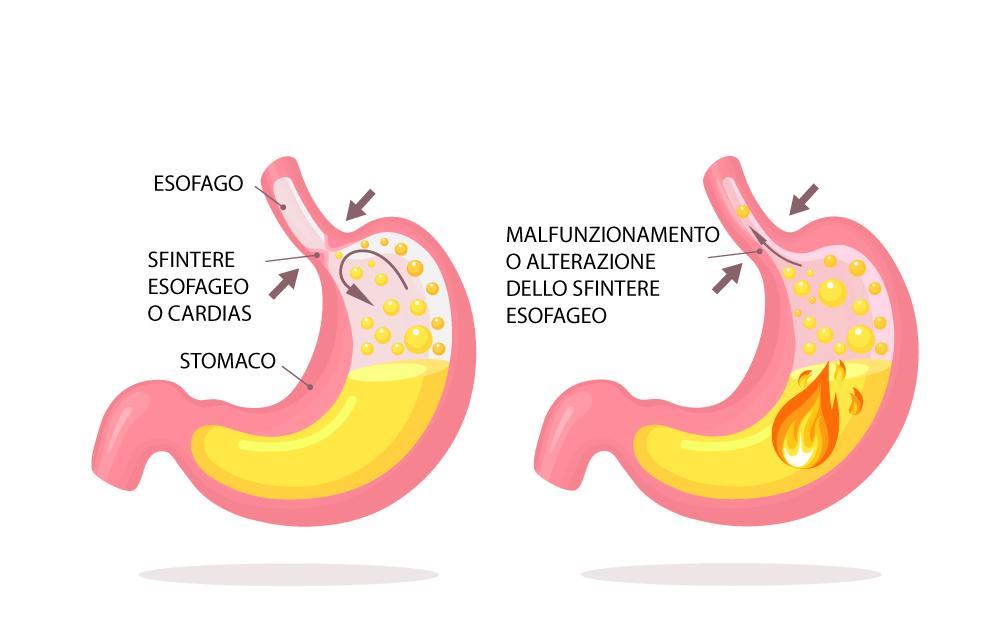 Reflusso gastroesofageo: malfunzionamento dello sfintere esofageo inferiore o cardias. Trattamento osteopatico