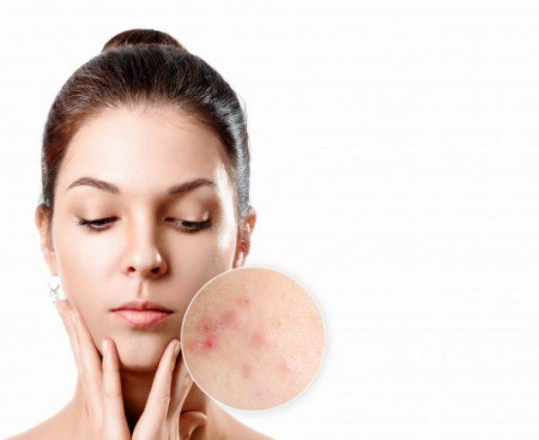 Cicatrici, segni ed esiti dell'acne eliminazione definitiva con laser con Chirurgo Plastico a Sesto San Govanni
