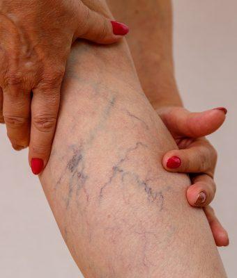 Terapia sclerosante, sclerosanti, scleroterapia per la cura di capillari e vene varicose a Sesto San Giovanni Angiologo