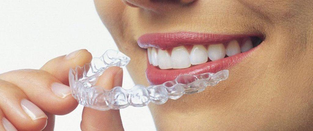 Il sistema quasi invisibile per correggere i denti storti e le malocclusioni, pratico, discreto e rimovibile