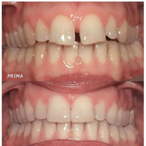 Allineamento denti prima e dopo con apparecchio invisibile