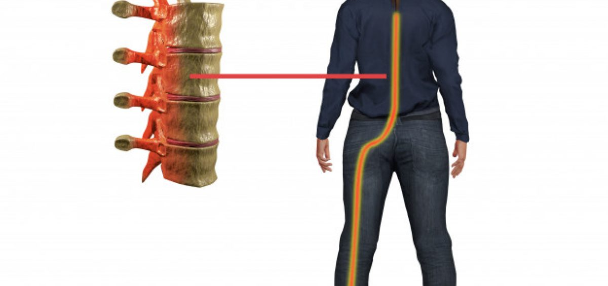 Sciatalgia o sciatica: trattamento osteopatico e ginnastica posturale, osteopata sesto san giovanni