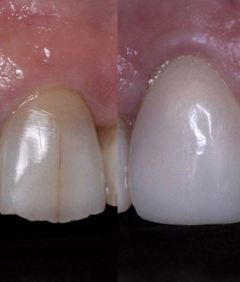 Ricostruzione denti con intervento chirurgico Sesto San Giovanni